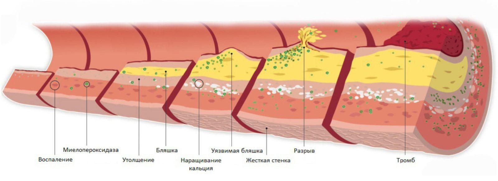 Склероз. Атеросклероз