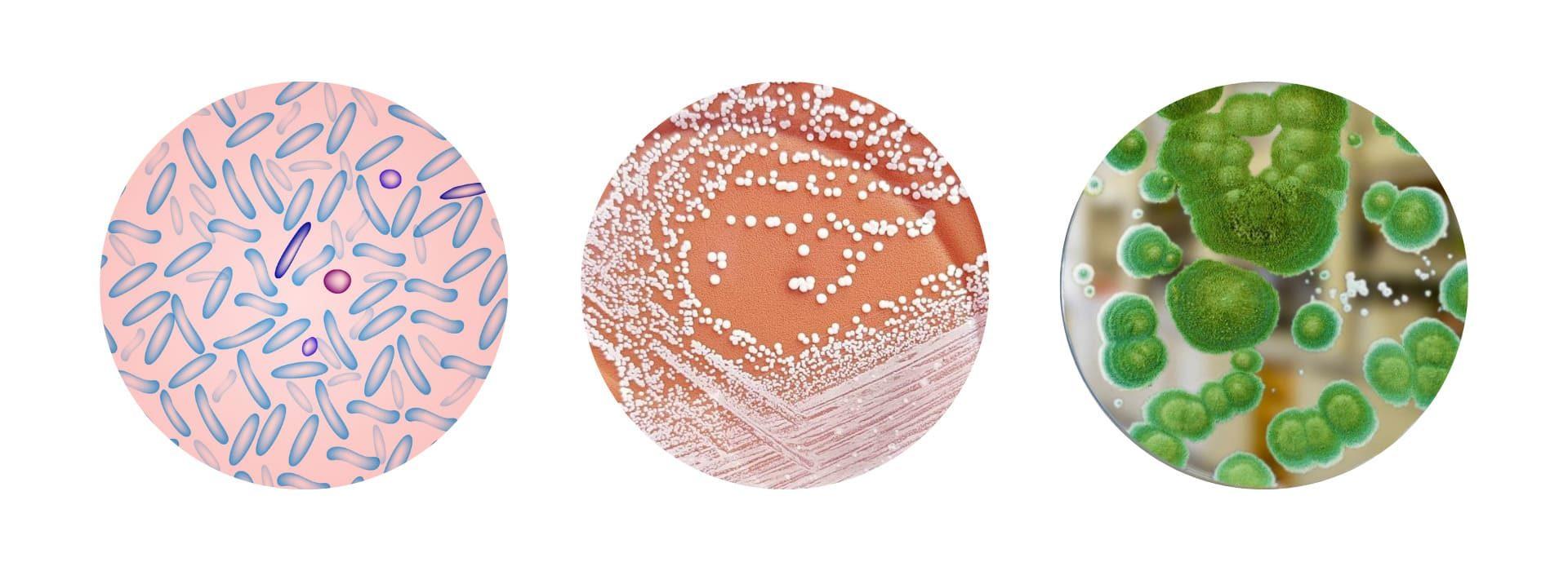 Микроорганизмы в кишечнике человека