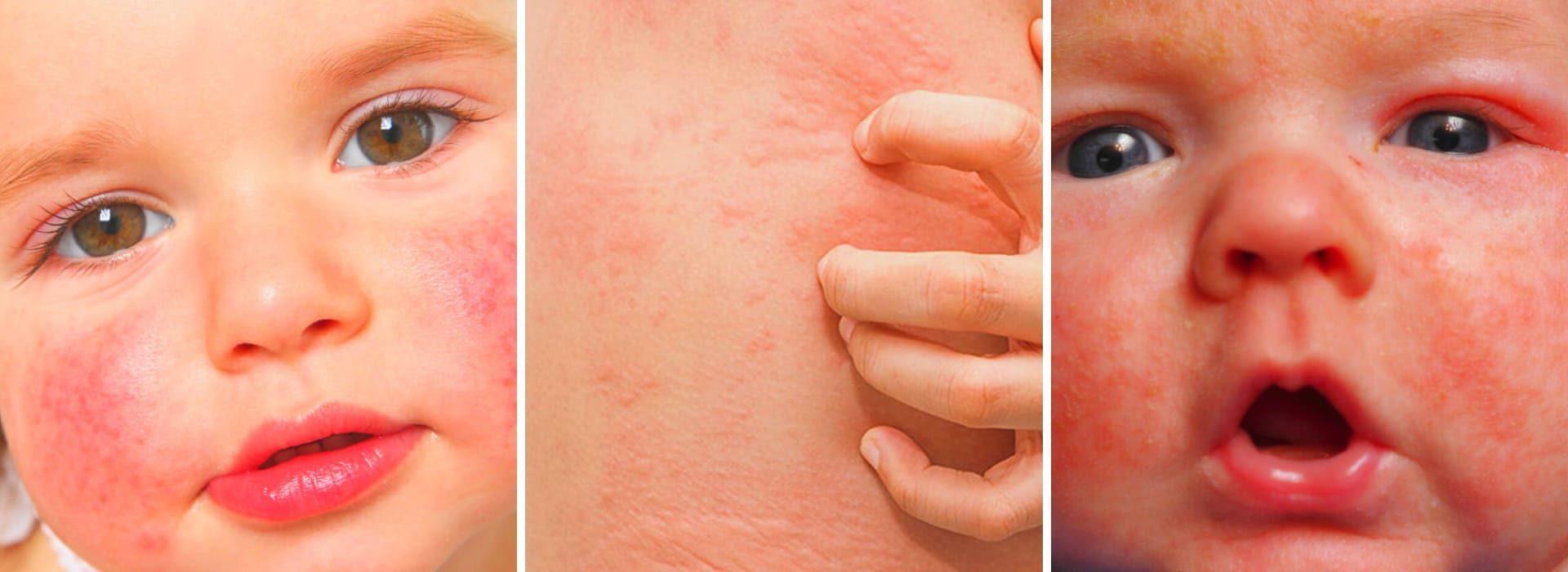 Как проявляется пищевая аллергия