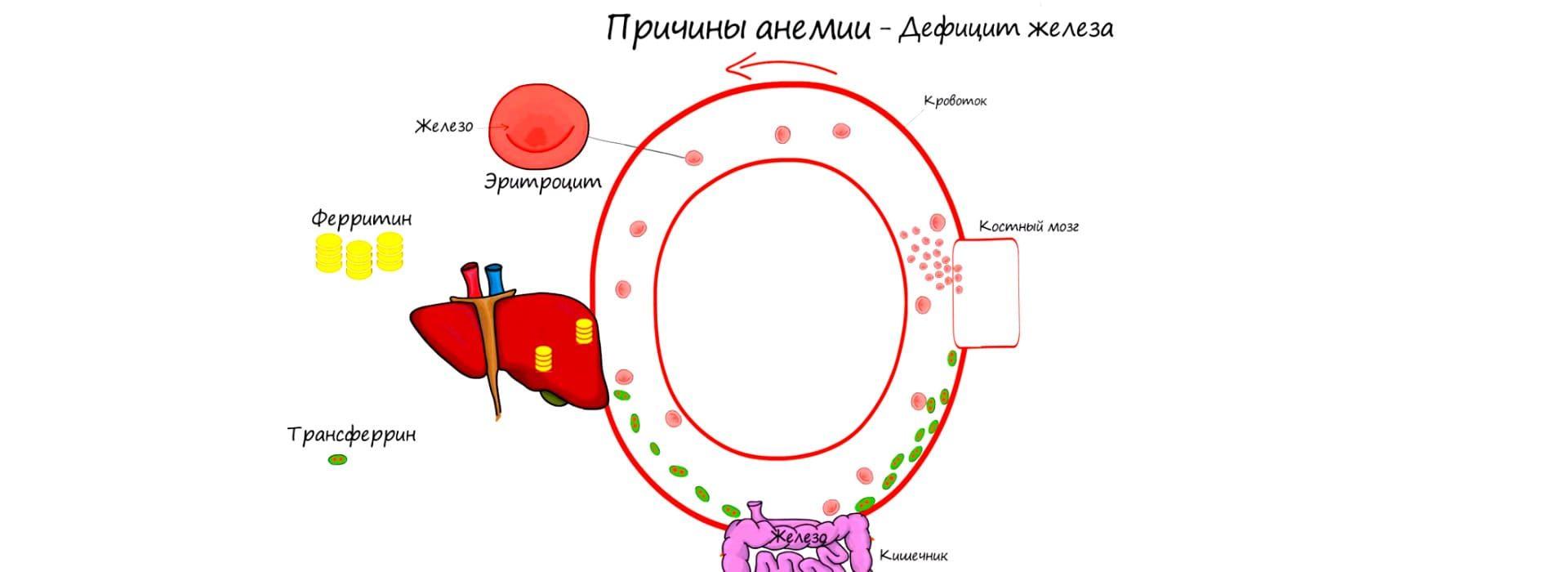 Наиболее частые причины анемии
